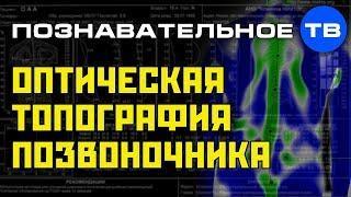 Вторая топография позвоночника (Познавательное ТВ, Артём Войтенков)